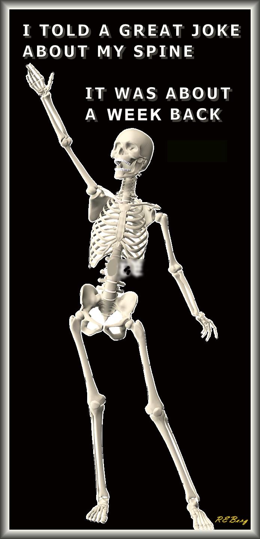 skeletal-standup